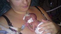 Mencegah Kelahiran Prematur