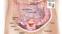 Mengenal Gejala Kista Yang Tumbuh Di Ovarium