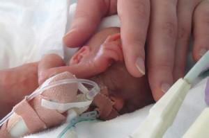Cara Yang Tepat dan Aman Merawat Bayi Prematur